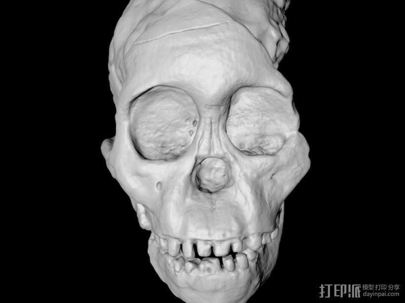 儿童颅骨 3D模型  图2