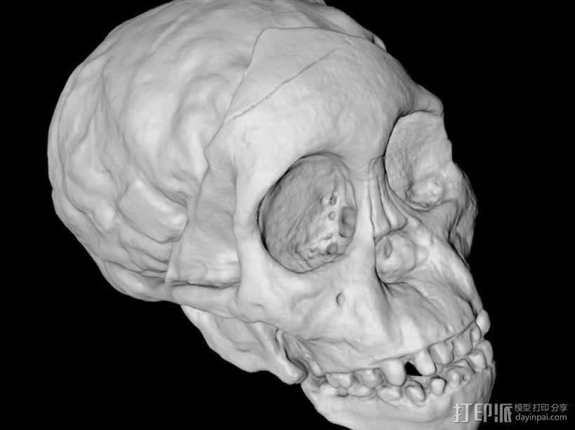 儿童颅骨 3D模型  图1