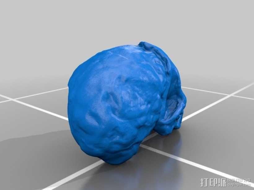 儿童颅骨 3D模型  图4
