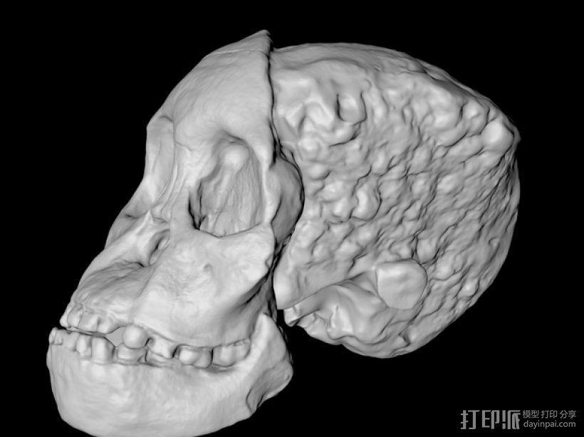 儿童颅骨 3D模型  图3