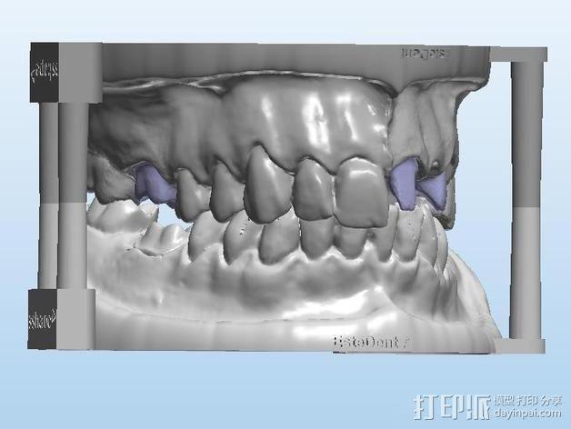 牙齿和牙床 3D模型  图4