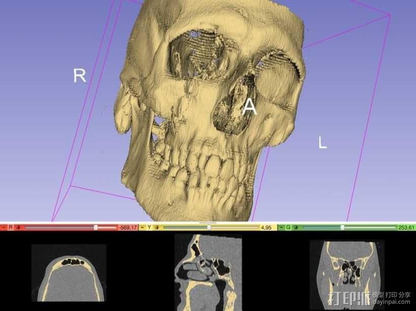 头骨(前半部分) 3D模型  图2