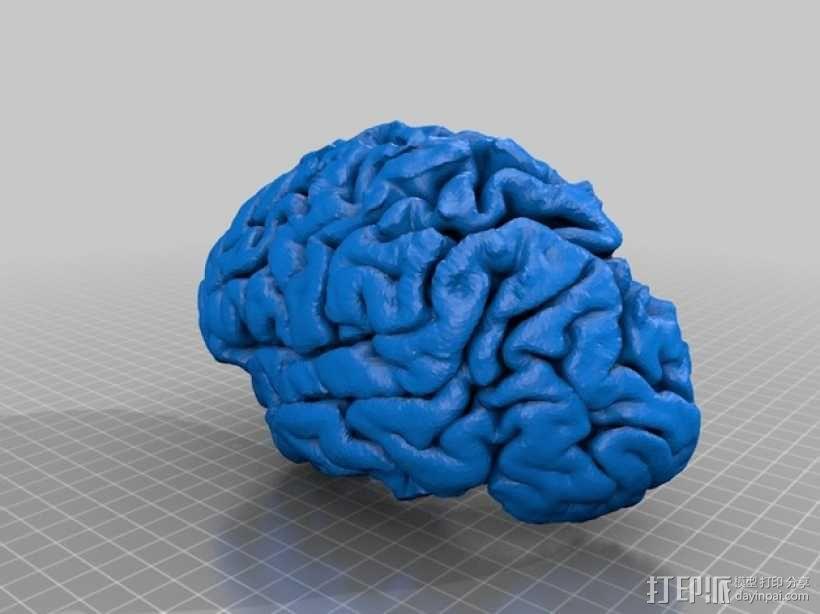 人脑 3D模型  图3