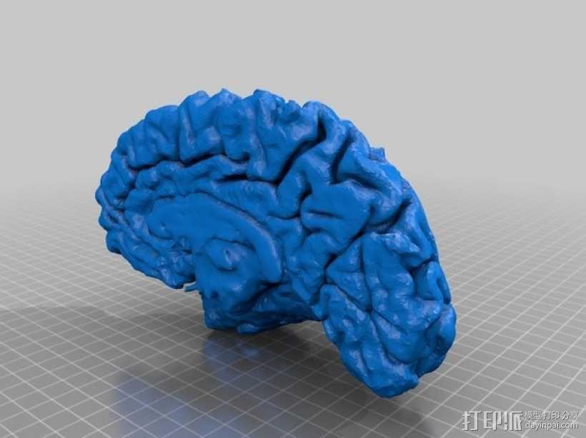 人脑 3D模型  图4