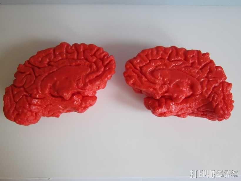 人脑 3D模型  图5