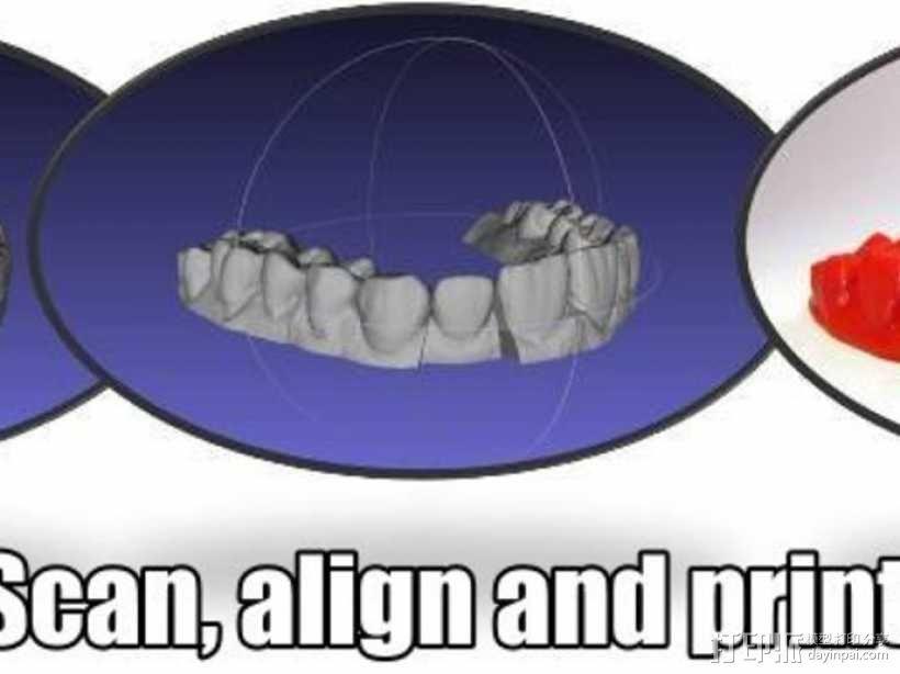 牙齿模型 3D模型  图1