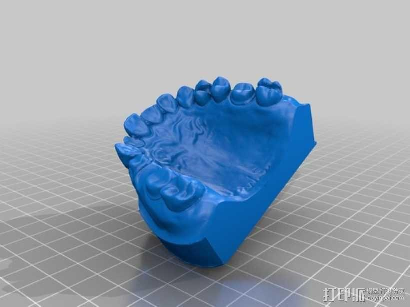 牙颌模型 3D模型  图1
